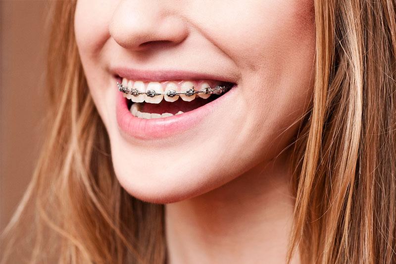 Kawakami Orthodontics Special Offers in San Pedro